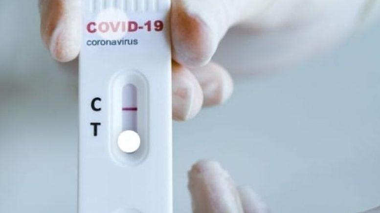 Coronavirus, superati i 20 milioni di contagi nel mondo